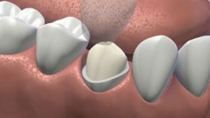 Limite cervicale (Source : CEREC)